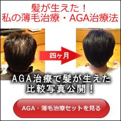 私の薄毛治療・AGA治療法